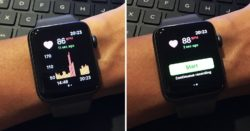 Apple Watches and Sleep Tracking Apps May Cause Bizarre Sleep Disorder